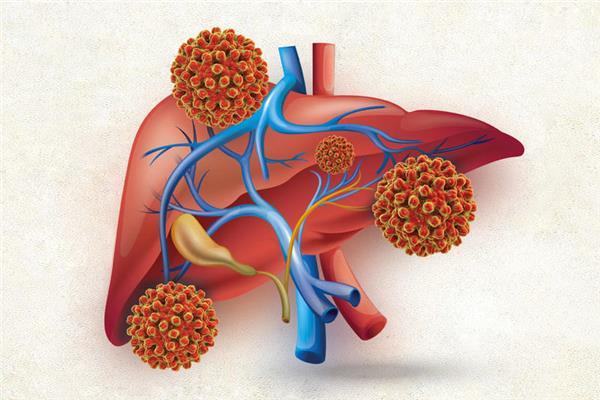 شاهد «100 مليون صحة» خفضت الإصابة بالكبد بنسبة 92